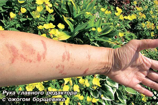 Чем лечить ожоги от борщевика в домашних условиях 178